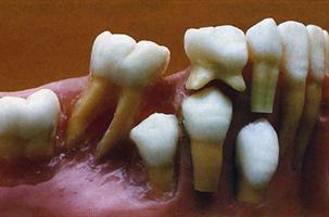 Πρόωρη απώλεια παιδικών δοντιών από τερηδόνα - Ορθοδοντικός Δρ. Ζαρμπή