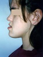 Γνάθοι που είναι δυσανάλογες με το υπόλοιπο πρόσωπο ως προς το μέγεθος ή/και τη θέση - Ορθοδοντικός Δρ. Ζαρμπή