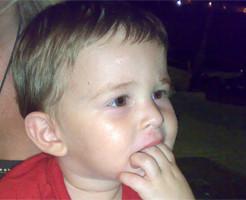 Δυσκολία στη μάσηση και το δάγκωμα - Ορθοδοντικός Δρ. Ζαρμπή
