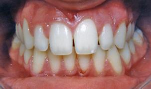 Αποτέλεσμα ορθοδοντικής θεραπείας συνωστισμένων δοντιών - Δρ. Ζαρμπή