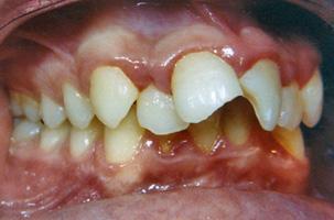 Προεξέχοντα δόντια