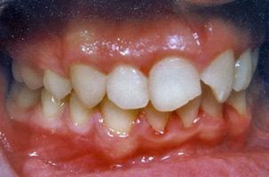Αποτέλεσμα ορθοδοντικής θεραπείας προεξεχόντνω δοντιών - Δρ. Ζαρμπή