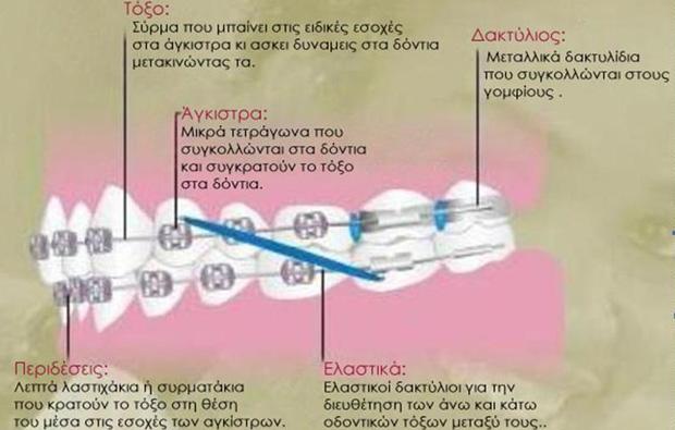 Ακίνητοι Μηχανισμοί - Ορθοδοντικός Δρ. Ζαρμπή