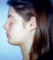 Πλαστική Χειρουργική - Ορθοδοντικός Δρ. Ζαρμπή