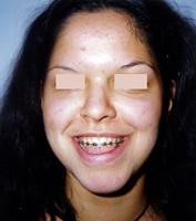 Χειρουργική επέμβαση - Ορθοδοντικός Δρ. Ζαρμπή