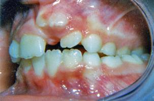 Συνωστισμένα δόντια - Ορθοδοντικός Δρ. Ζαρμπή