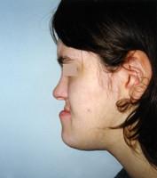 Προγναθισμός κάτω γνάθου - Ορθοδοντικός Δρ. Ζαρμπή