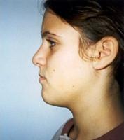 Ψευδοπρογναθισμός της κάτω γνάθου - Ορθοδοντικός Δρ. Ζαρμπή