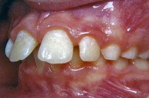 Δόντια με διαστήματα - Ορθοδοντικός Δρ. Ζαρμπή