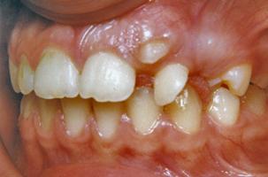 Δόντια σε ετεροτοπία - Ορθοδοντικός Δρ. Ζαρμπή
