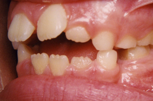 Δόντια χωρίς επαφή μεταξύ τους