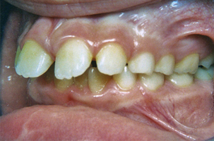 Προεξέχοντα άνω δόντια - Ορθοδοντικός Δρ. Ζαρμπή