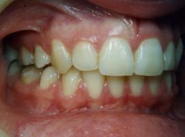 Έντονοι συνωστισμοί και οπισθογναθισμός κάτω γνάθου - Ορθοδοντικός Δρ. Ζαρμπή
