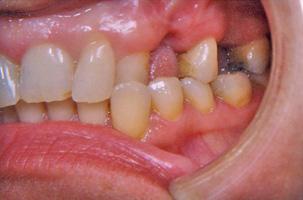 Ορθοδοντικά προβλήματα και απώλεις δοντιων. Ορθοδοντική - προσθετική θεραπεία