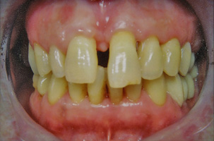 Περιοδοντική νόσος με μετακινήσεις δοντιών. Περιοδοντική-Ορθοδοντική-Προσθετική θεραπεία