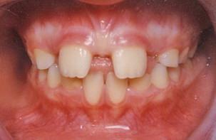 Διάστημα μεταξύ των επάνω δοντιών - Ορθοδοντικός Δρ. Ζαρμπή