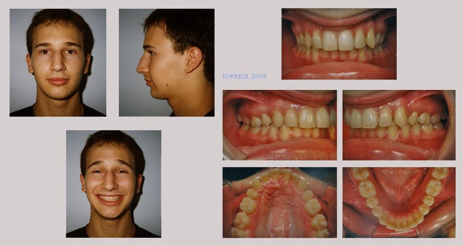 Συνωστισμός, υπερκάλυψη κάτω δοντιών και έγκλειστος κυνόδοντας στον ουρανίσκο. Θεραπεία εξαγωγών