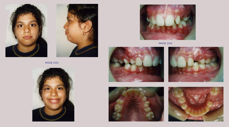 Στένωση άνω γνάθου, υπερκάλυψη κάτω δοντιών, οπισθογναθισμός της κάτω γνάθου