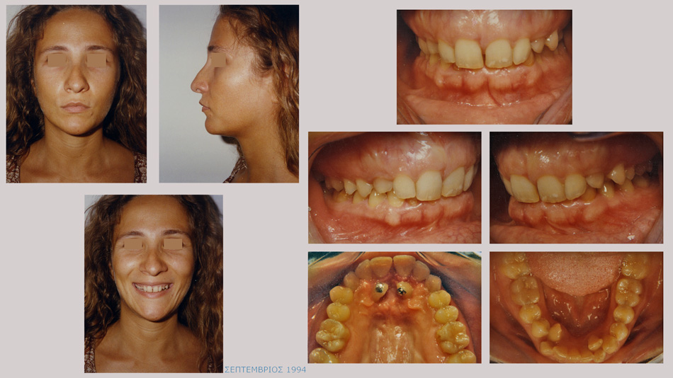 Υπερκάλυψη των κάτω προσθίων δοντιών