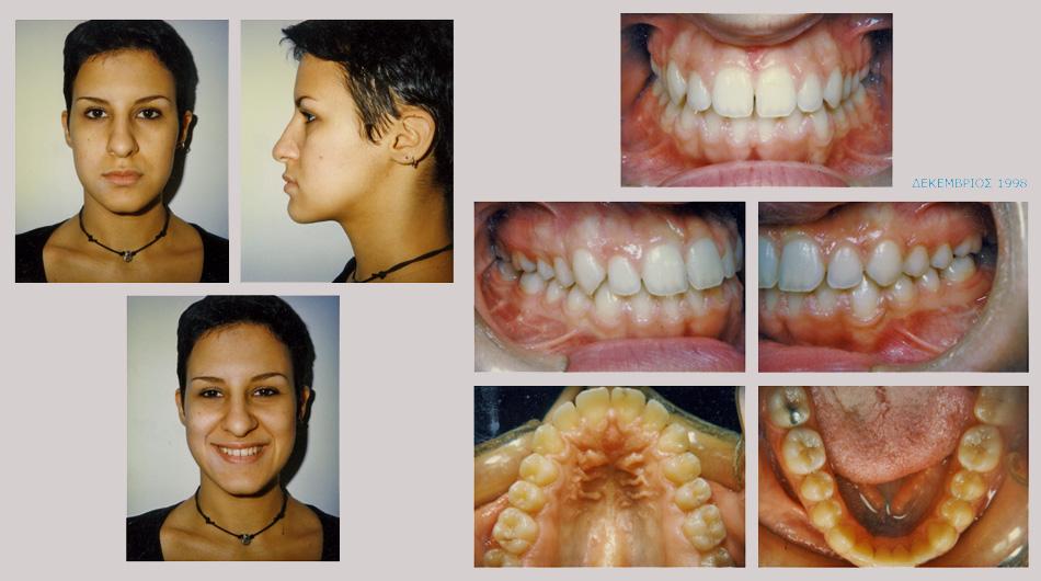 Έντονος προγναθισμός κάτω γνάθου - Ορθοδοντική Θεραπεία Δρ. Ζαρμπή