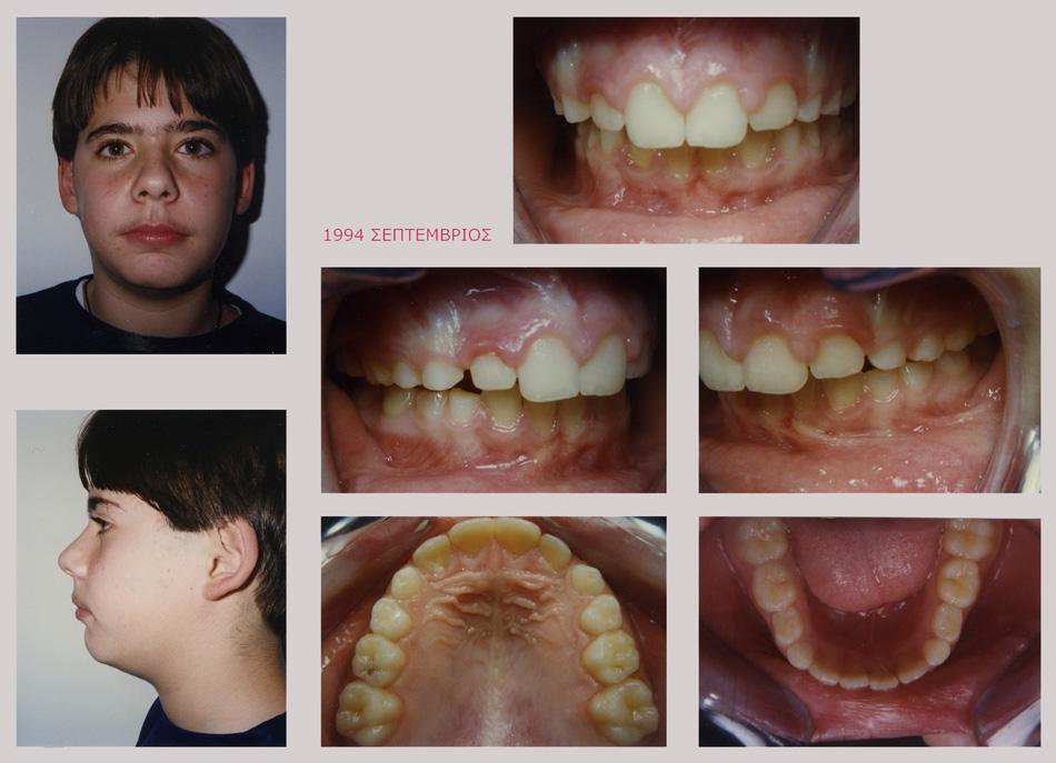 Στένωση, υπερκάλυψη κάτω δοντιών, έντονος οπισθογναθισμός, διάστημα προσθίων δοντιών
