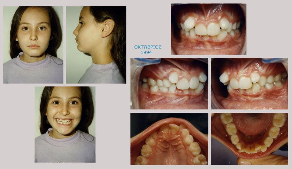 Συνωστισμός και υπερκάλυψη των κάτω δοντιών - Θεραπεία εξαγωγών