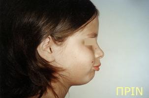 Ορθοδοντική θεραπεία για εφήβους - Ορθοδοντικός Δρ. Ζαρμπή