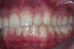 Φυσιολογικό στόμα - Ορθοδοντικός Δρ. Ζαρμπή, διδάκτωρ Πανεπιστημίου